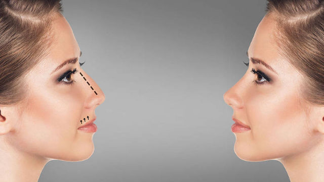 Motivos para la rinoplastia o cirugía estética de la nariz
