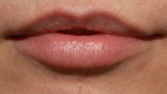 Aumento de labios Valencia Dr.Mira