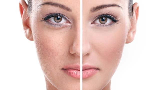 tratamientos de rejuvenecimiento facial sin cirugía.