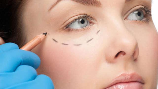 Alternativas no quirúrgicas a la cirugia de parpados