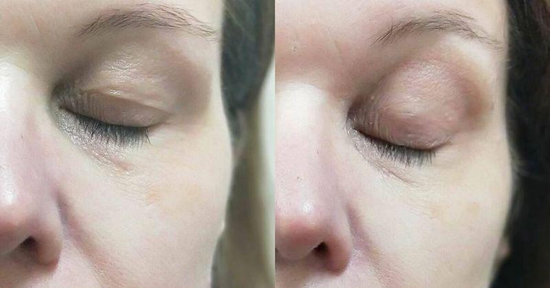 Blefaroplastia sin cirugía Antes y Después